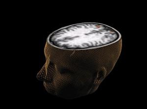 brain-aging2