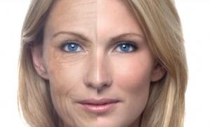 delay-aging