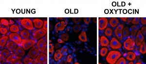Oxytocin May Help Rejuvenate Aging Muscles