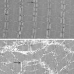 Penn-led Study Ties Aging to Oxidative Damage in Mitochondria